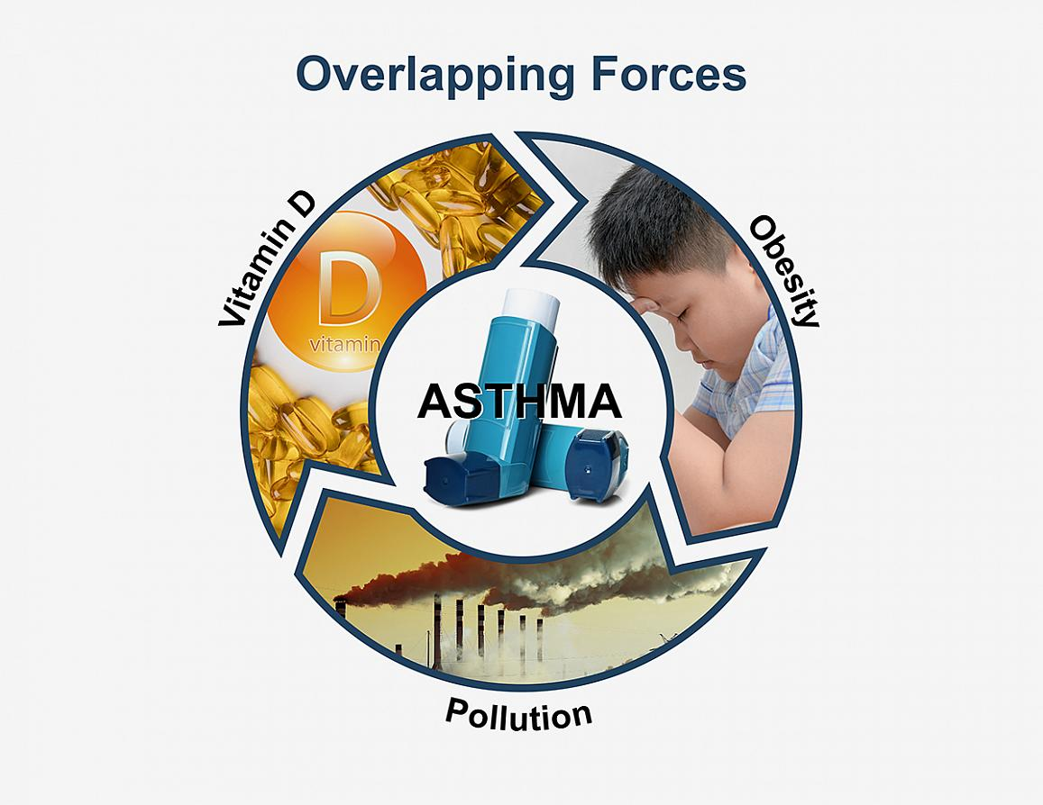 NIH factors that contribute to asthma