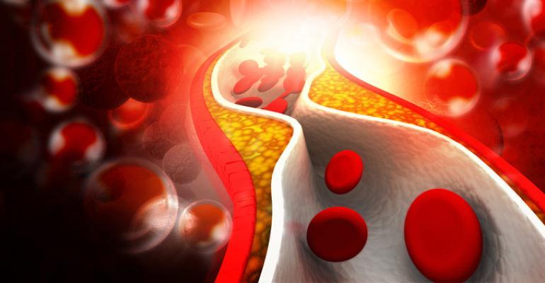 vitamin K2 atherosclerosis