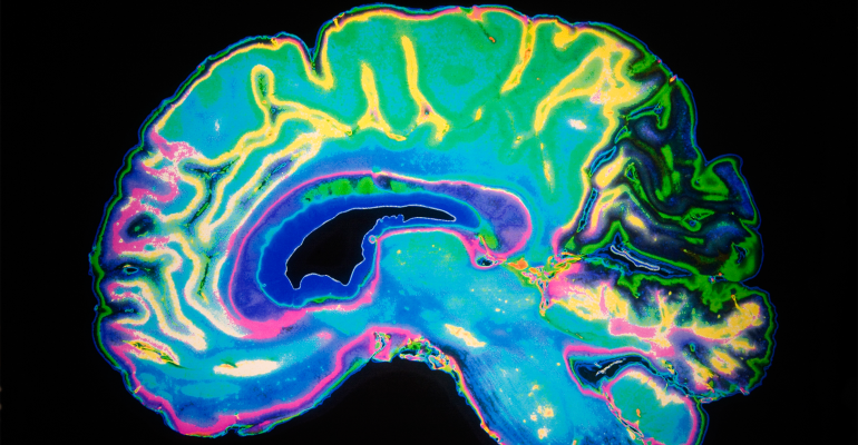 MRI image of a brain